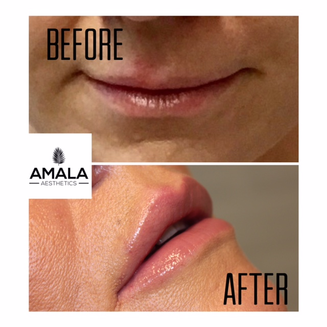 Botox Anti ageing Botox Jersey Lip fillers Best lip fillers Jersey